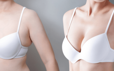 Everything to be known about Breast Augmentation