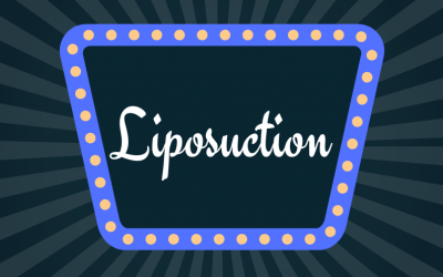 The NowMe Guide To…Why Liposuction