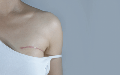 The NowMe Guide To…  Why Breast Reconstruction