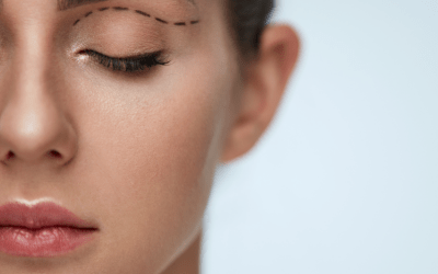 Everything you need to know about Eyelid Surgery