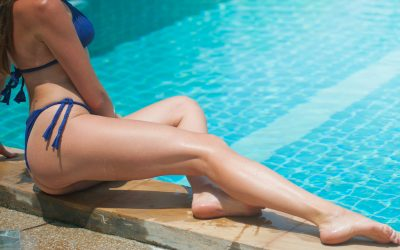 Everything you need to know about Spiderveins